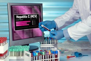Can A Risk Factor For Hepatitis C Increase Complications