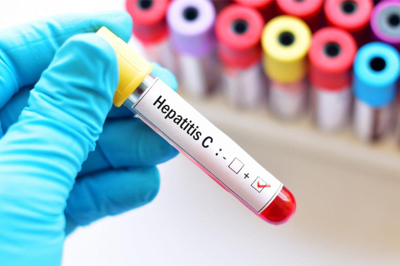 Is Hepatitis C Contagious? Deciphering the Misconceptions