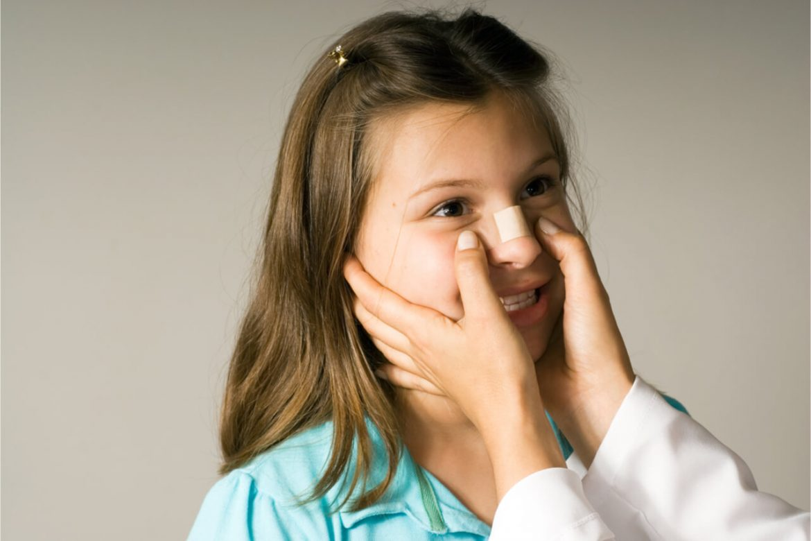How To Tell If Your Nose Is Broken? (Symptoms and Treatment)