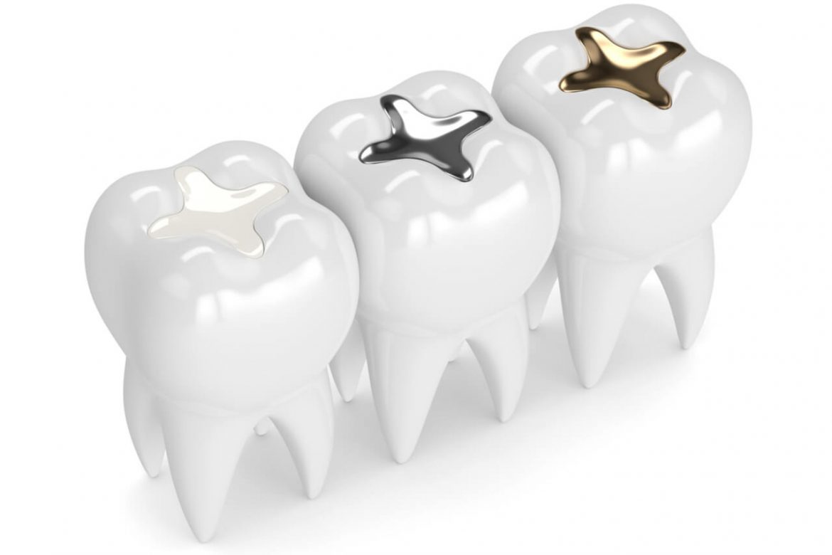 How Much Is A Dental Filling? Is It Covered By Dental Insurance?