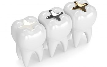 3 common types of dental fillings