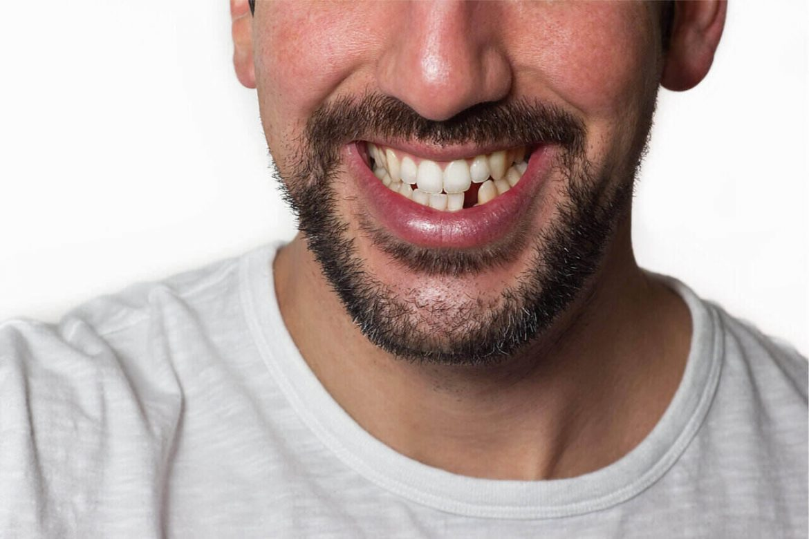 Options For Missing Teeth: Replace It Like You've Never Lost Them At All