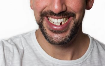 Say hello to the options for missing teeth. It will bring back your lost tooth.