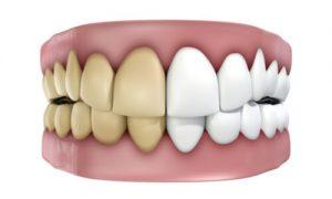 illustration of teeth discoloration